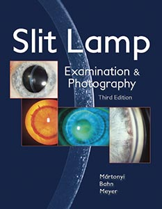 Photo Slit Lamp, Martonyi