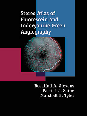 Stereo Atlas of Fluorescein and Indocyanine Green Angiogrphy